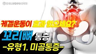 꼬리뼈 통증(유형 1형-미골통증)/꼬리뼈 골절/회음부 …