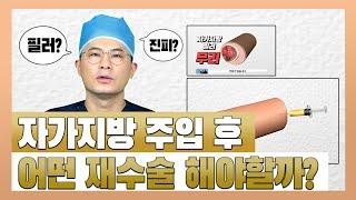 자가지방 음경확대수술후 재수술을 해야한다면?