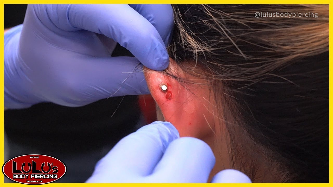 Helix Piercing Gone Wrong After 1 Year!!