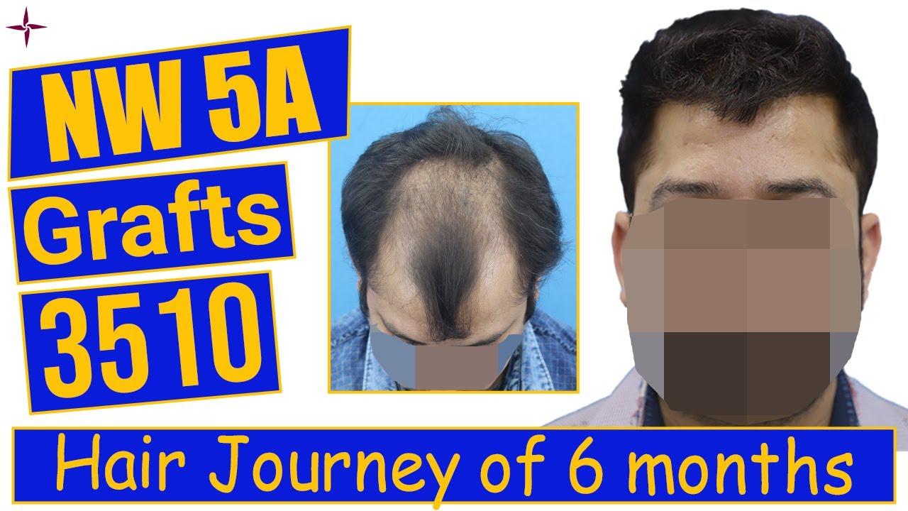 Hair Transplantation: 3510 grafts, Grade 5A  @Eugenix Hair Sciences by Drs Sethi & Bansal