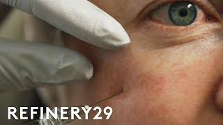 I Got Fillers Under My Eye For The First Time | Macro Beauty | Refinery29