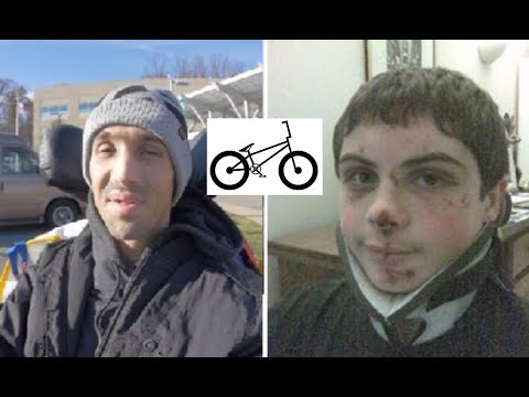 SCOTTY CRANMERS CRASH COMPARED TO MINE! We Both Had Our Skull Removed! Part 2