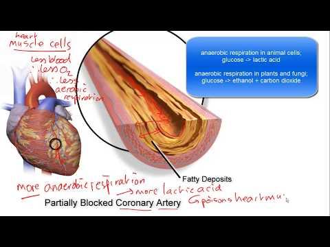 Coronary Heart Disease for IGCSE Biology