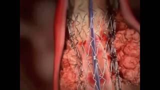 A artérias carótidas nas como placa reduzir