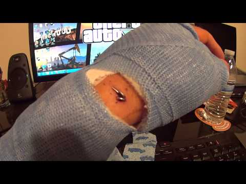 Scapholunate Ligament Tear Reconstruction Surgery - Day 10