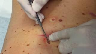 Dilated Pore of Winer, Popaholics & Blackhead Removal Tools 💯💯😍😃