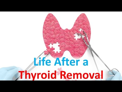 Life After a Thyroid Removal