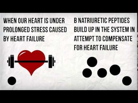 BNP and Heart Failure