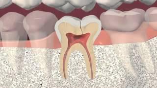 How to Fix Broken Back Teeth
