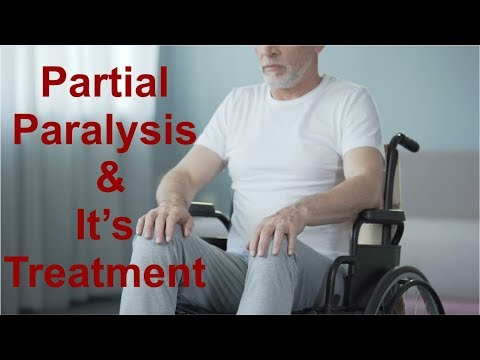 Partial Paralysis Hemiplegia & its Treatment