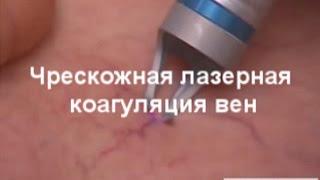Лечение варикоза лазером в клинике УРО-ПРО | г. Ростов-на-Дону(, 2016-03-31T08:12:44.000Z)