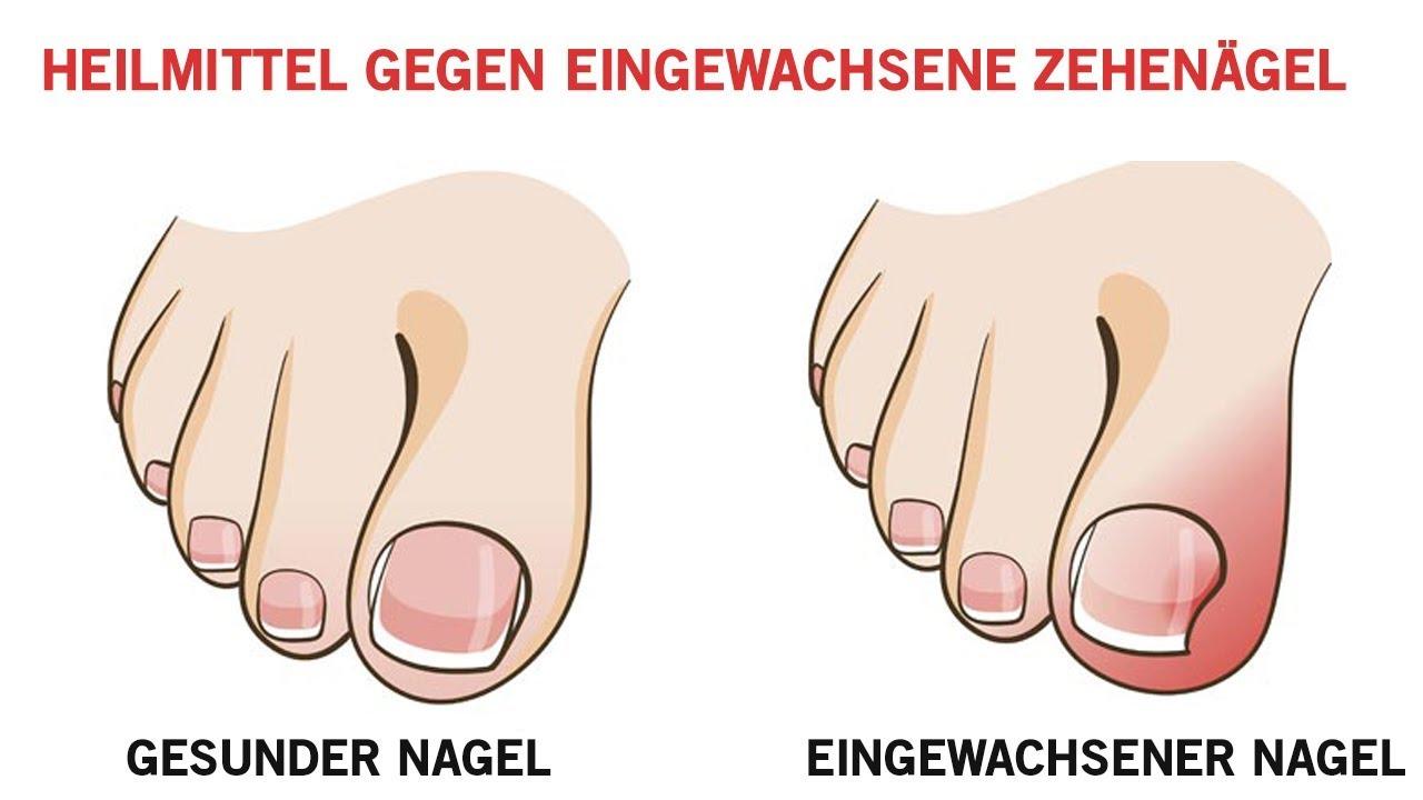 Zehennagel eingewachsener salbe gegen Eingewachsener Zehennagel
