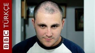 Türkiye'de saç ektirme: Bir İngiliz'in kellikle mücadele yolculuğu