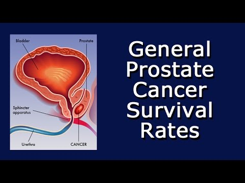 General Prostate Cancer Survival Rates