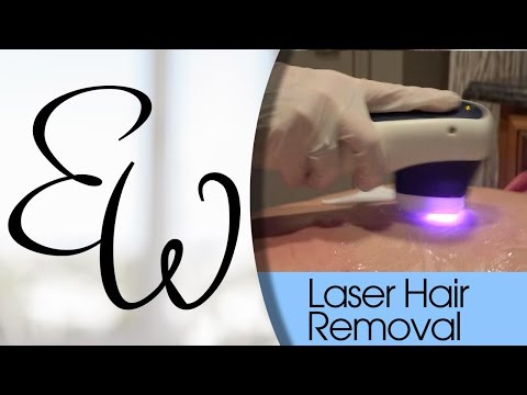 Laser Hair Removal Brentwood
