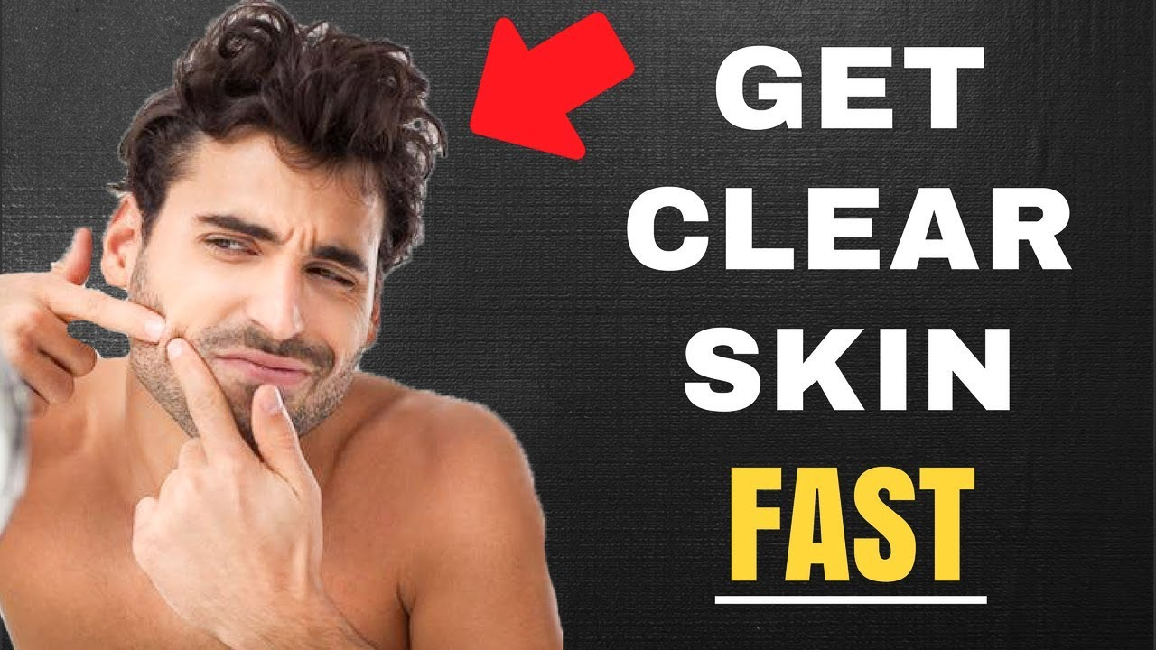 how to get clear skin fast youtube