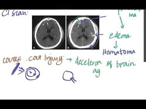 Download head injury part 2