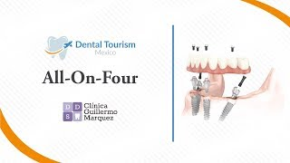 All-on-Four Los Algodones - Dental Tourism Mexico