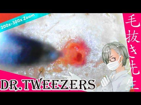 304 [200x Zoom]  Dr. tweezers 毛抜き先生の角栓や毛根