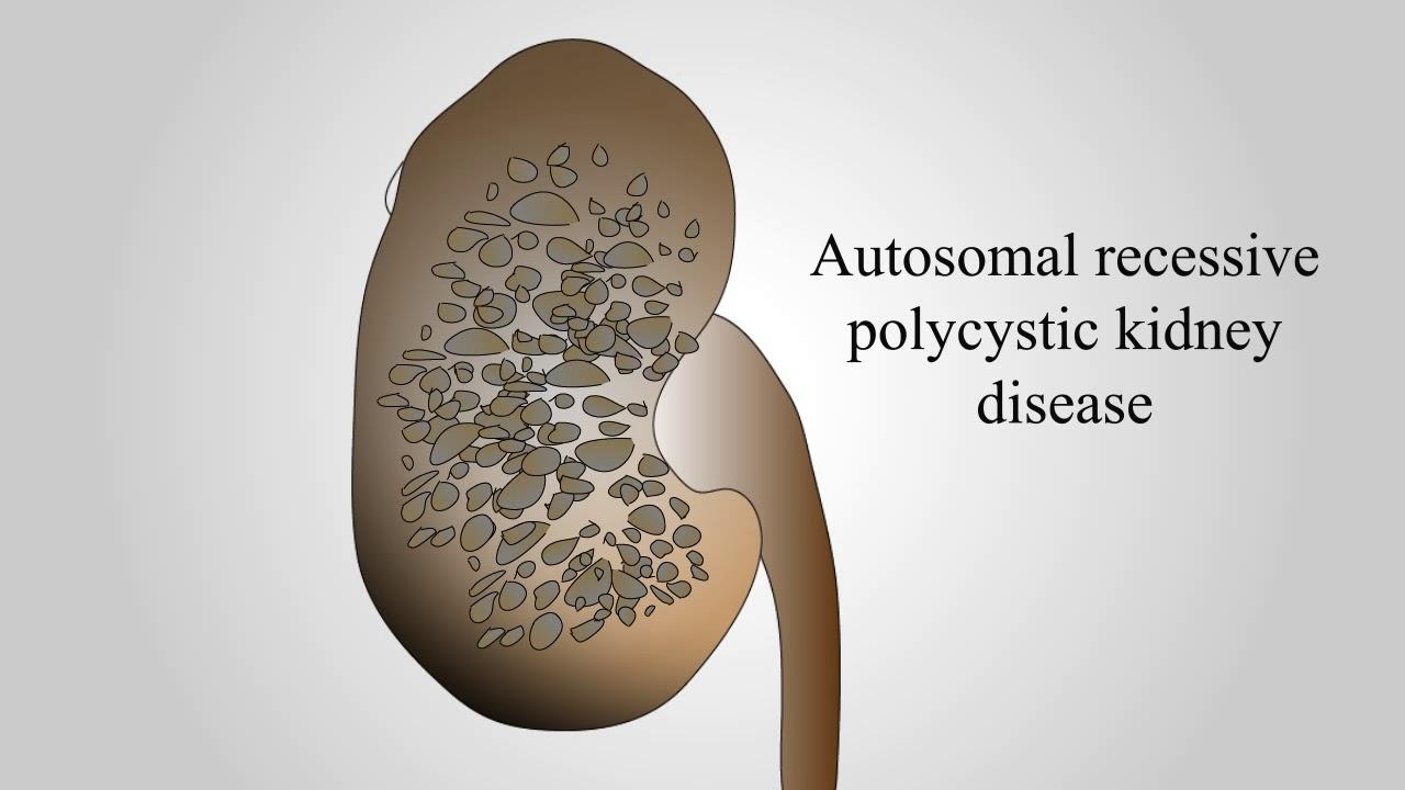 Cystic Diseases Of Kidney