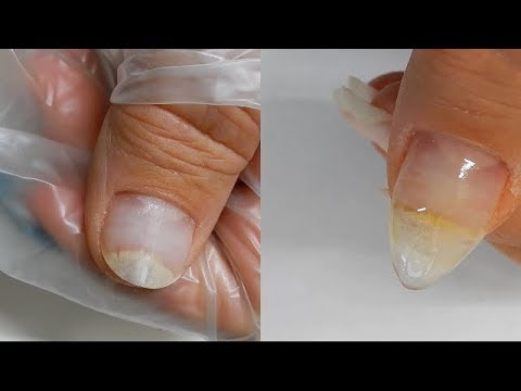 It's a Miracle ! -- Thumb Nail is Re - Attaching to Nail Bed --- w/ Help from TEA TREE OIL