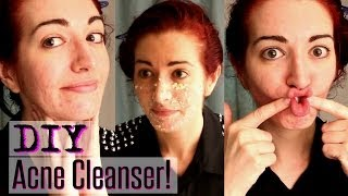 EASY ACNE CLEANSER! | Natural Treatment For Acne & Oily Skin Thumbnail
