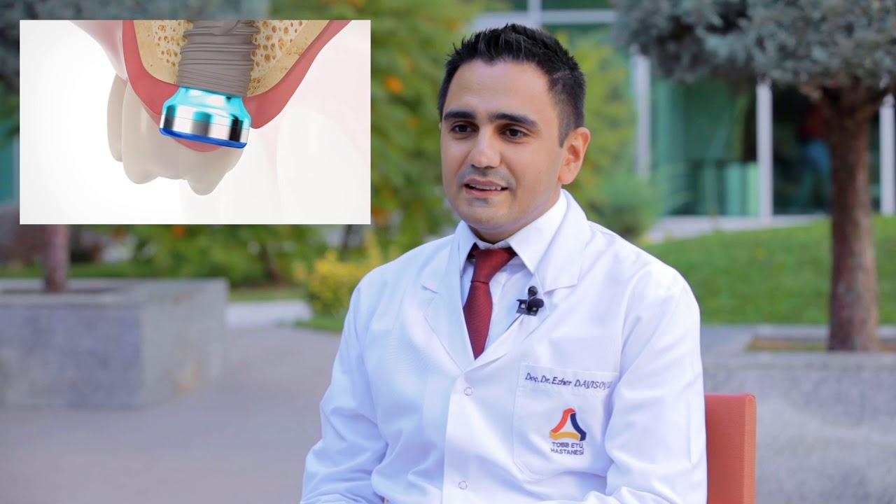 Doç Dr Ezher Dayısoylu Anında İmplant Uygulamaları
