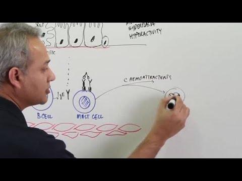 Asthma – Pathophysiology