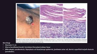 From solar keratosis to squamous cell carcinoma - exploring the architecture of squamous dysplasia.