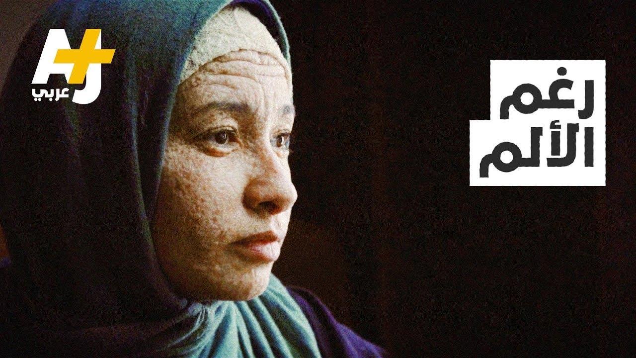 فتاة مصرية لم تتجاوز 22 سنة، لكنها بوجه عجوز.. شاهدوا كيف يعاملها المجتمع؟
