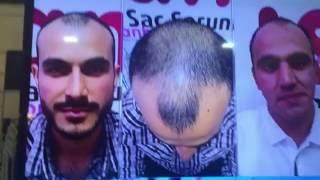 17 saç ekimi öncesi sonrası örnekler İSTANBUL TRANSPLUS KONYA hair transplant before after