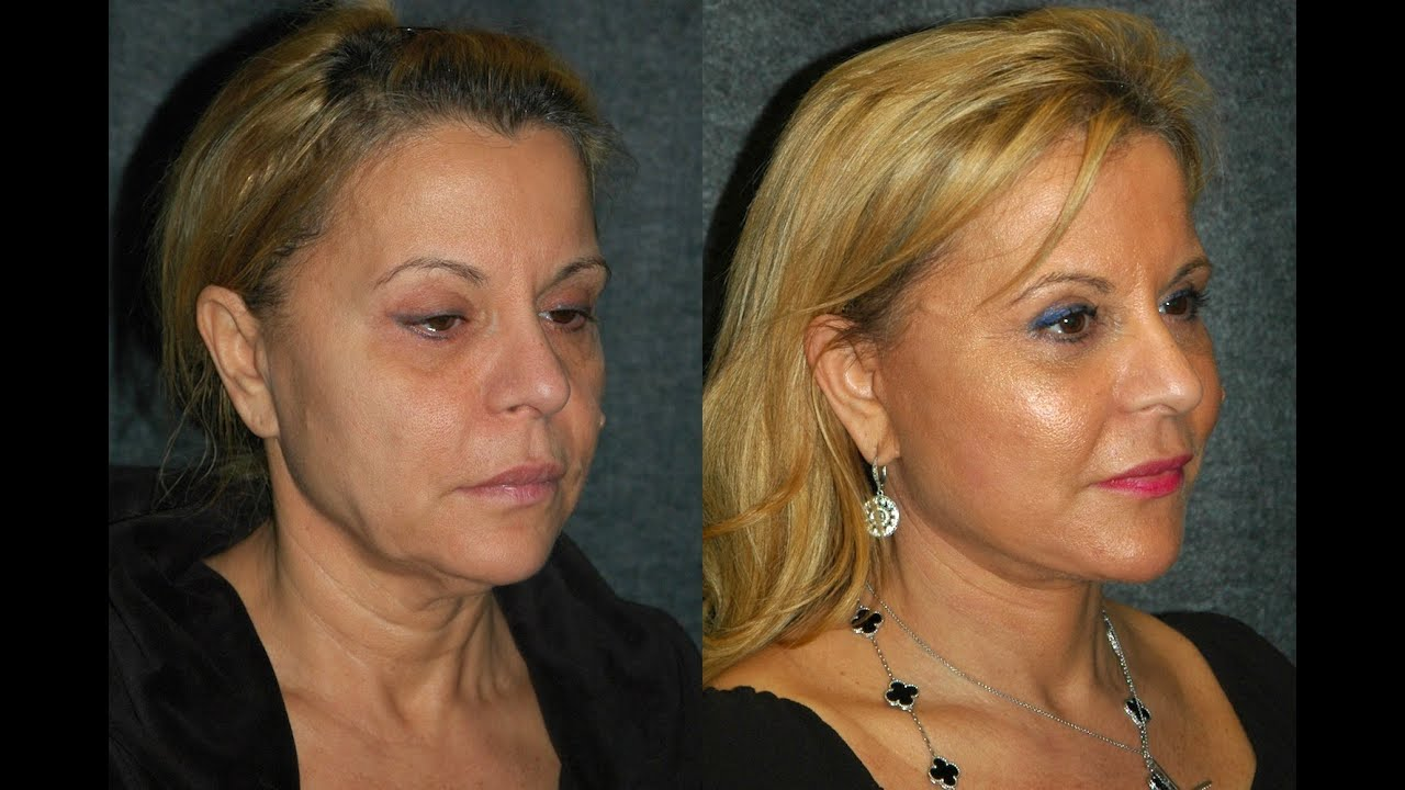 Smas Facelift Before And After 59 Year Old Woman Dr