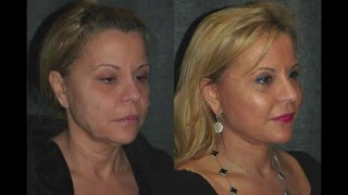 SMAS Facelift Before and After 59 Year Old Woman | Dr Jacono Reviews Natural Face Lift