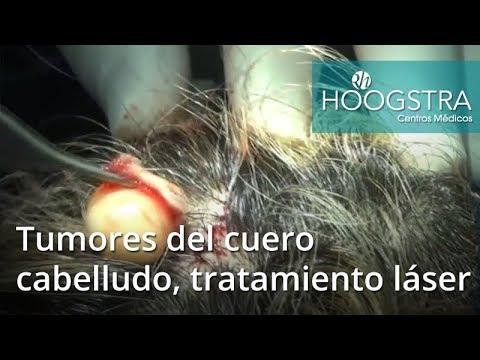 Tumores del cuero cabelludo, tratamiento láser (18185)