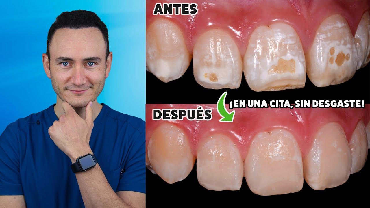 ¿Cómo eliminar manchas en los dientes sin desgastarlos, en una sola cita y sin carillas?