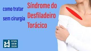 Pélvico doença desfiladeiro da do síndrome