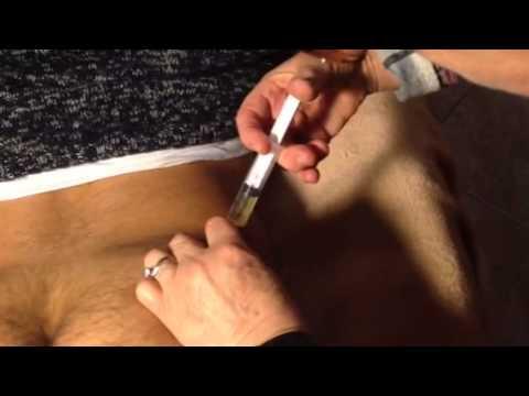 Dermatite di atopic di bambini di komarovskiya