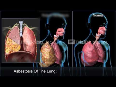 asbestos-animation---demo