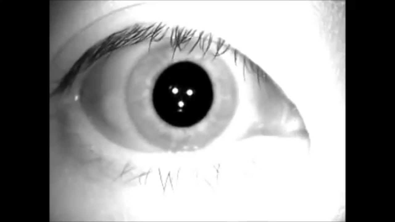 水平回旋性の眼振 - YouTube
