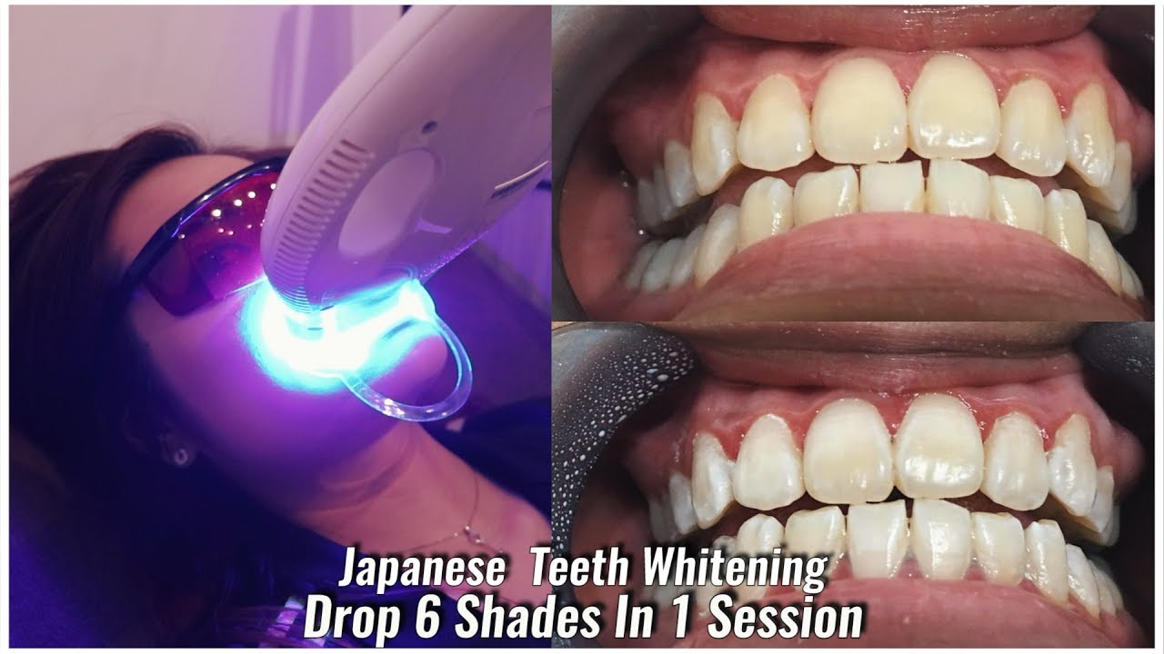 Japanese Teeth Whitening Singapore Painless Instant 6 Shades