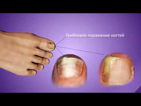 Микозан - эффективное лечение грибка ногтей