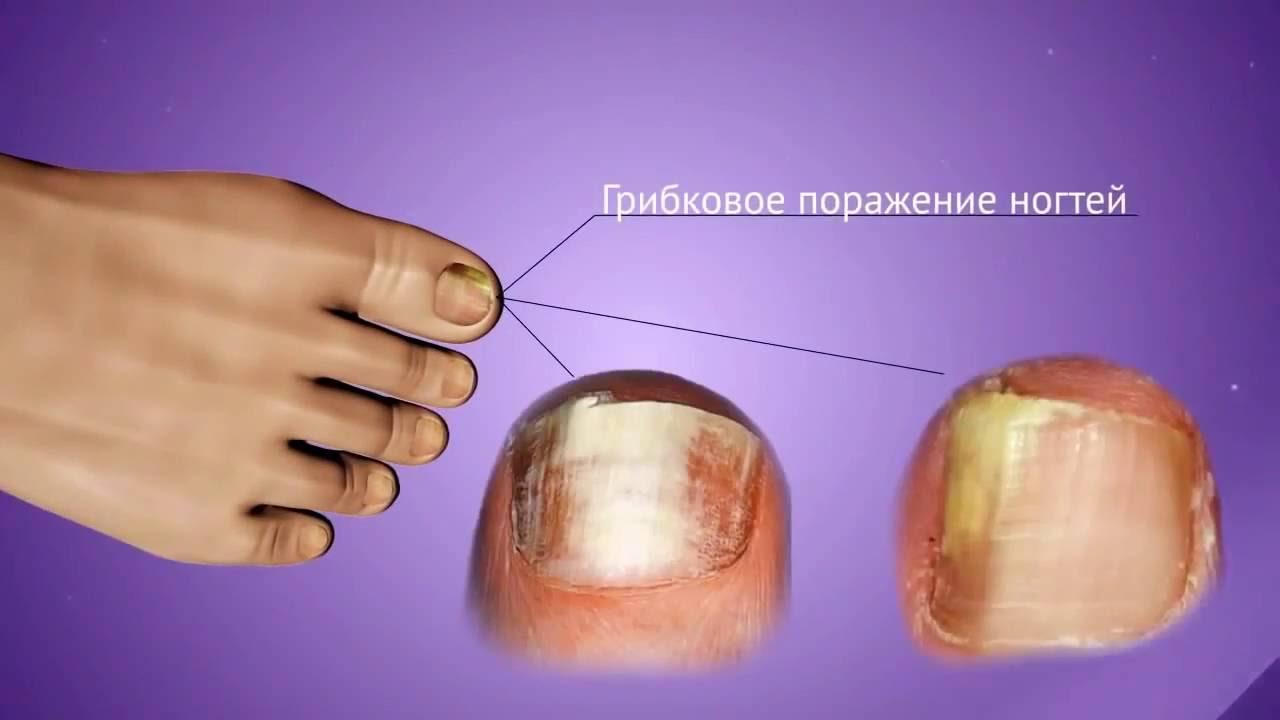 Чем эффективно лечить грибок ногтей на ногах отзывы