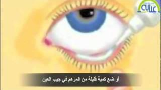الطريقة الصحيحة لإستخدام قطرات ومراهم العين