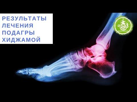 Подагрический артрит: симптомы, фото, лечение народными