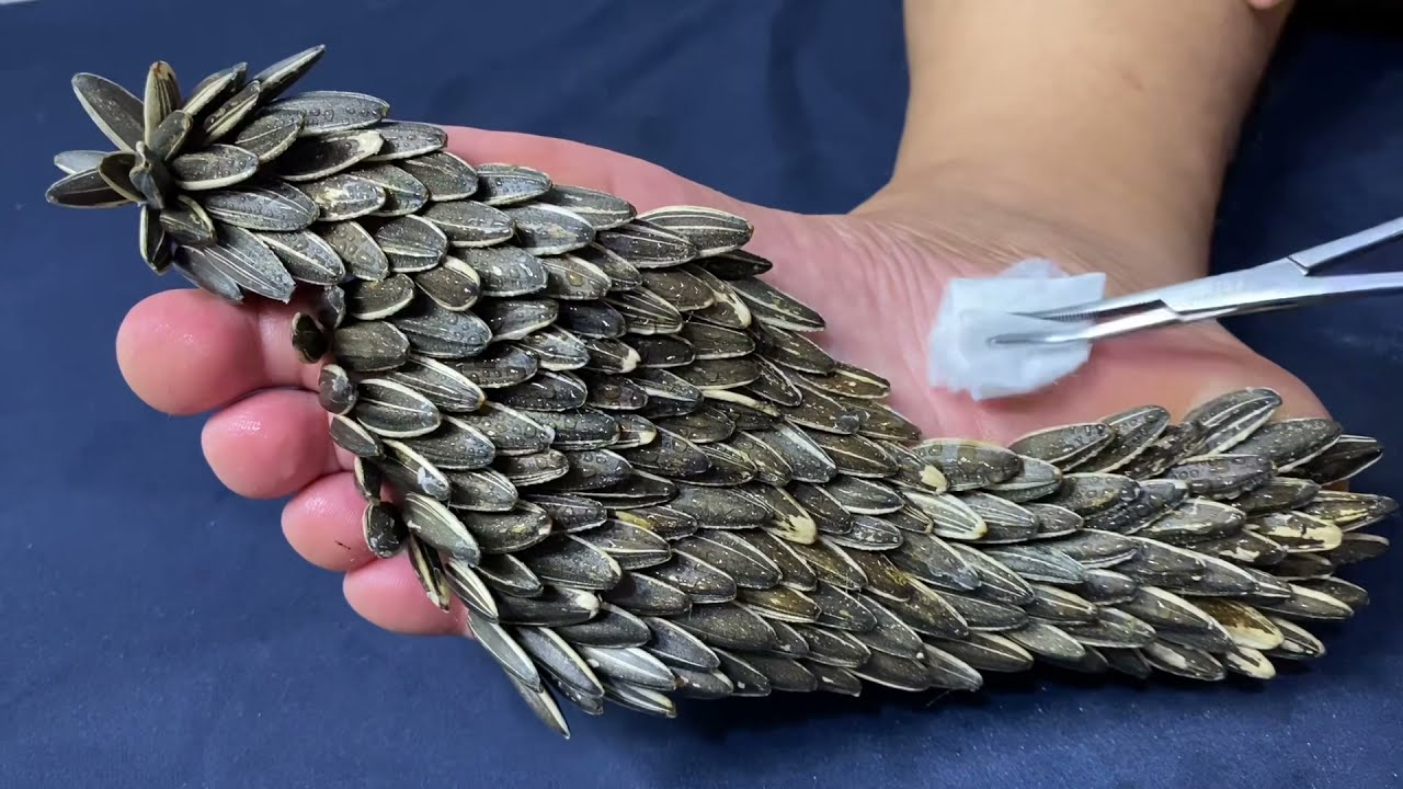 Remove marks on the soles of your feet with sunflower seeds