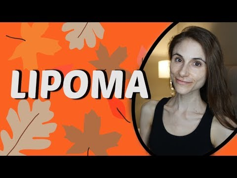 Download How To Cure Lipoma Naturally Home Remedies For