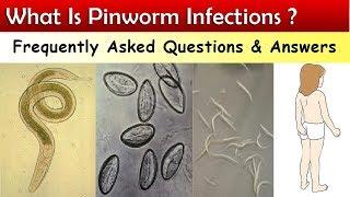 pinworm tojások milyen hőmérsékleten meghalnak