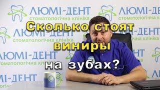 Сколько времени стоят виниры на зубах? Люми-Дент в Киеве