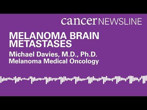 Melanoma brain metastases