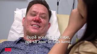 Dermatologie de top: Un nas fără limite
